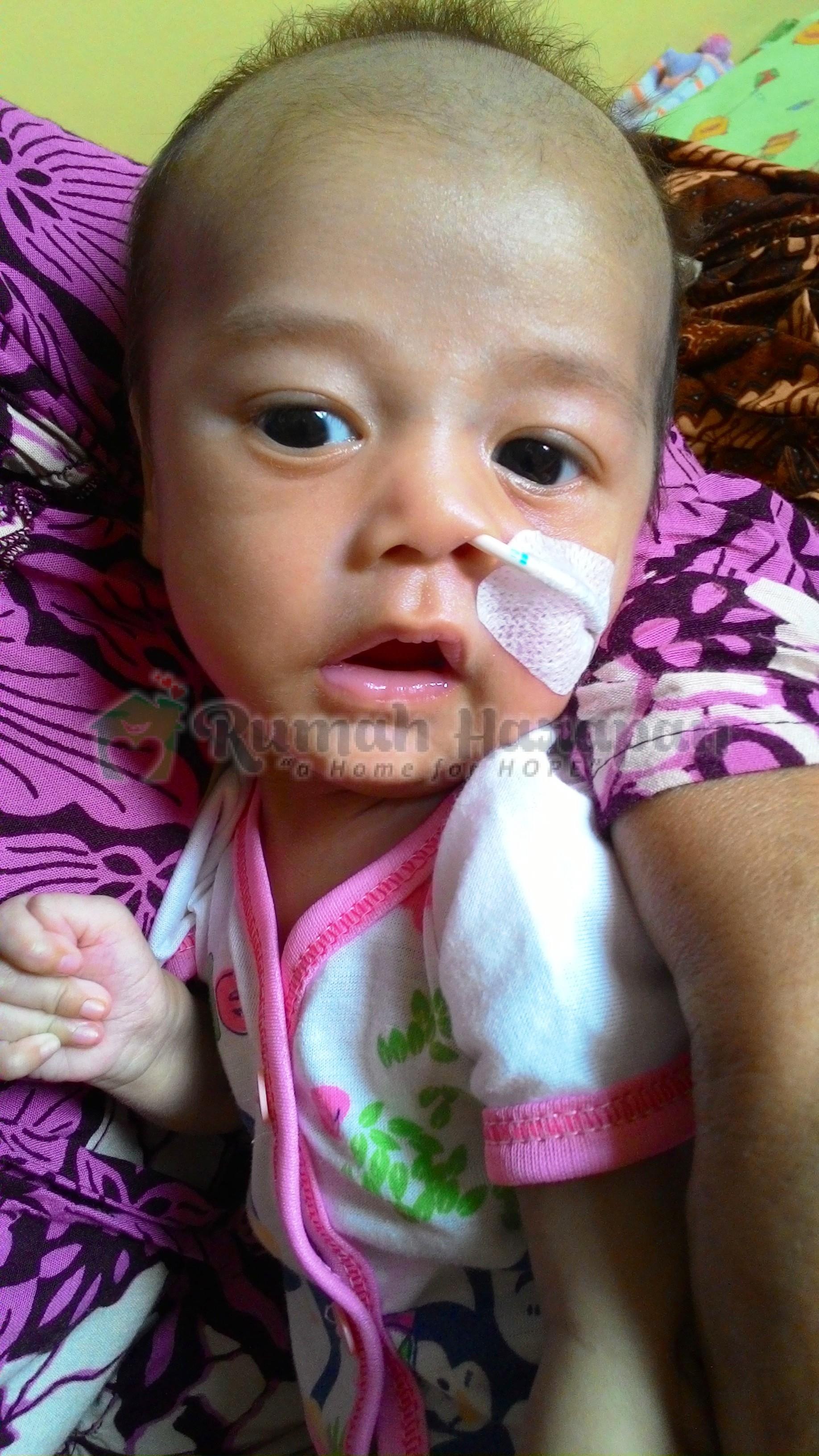 Rizki: Bayi Mungil yang Berjuang